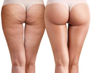 Φυσική αντιμετώπιση για την κυτταρίτιδα στα πόδια - LadiesWorld.gr